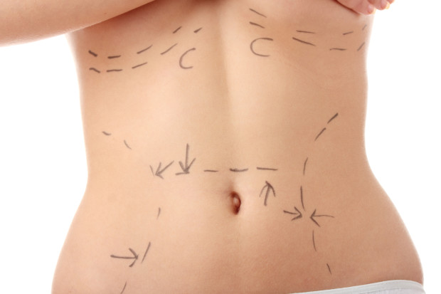 Closeup photo of a caucasian woman's abdomen marked with lines for abdominal cosmetic surgery