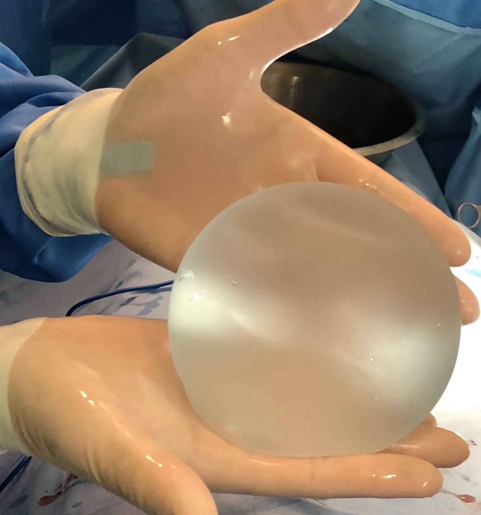Implante con chip 1