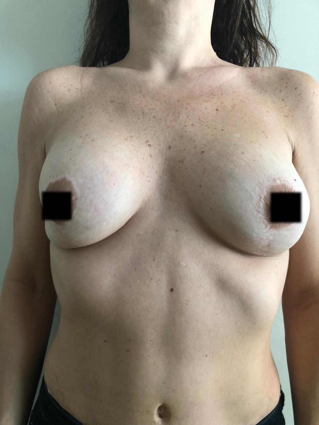 implantes-rotos-1