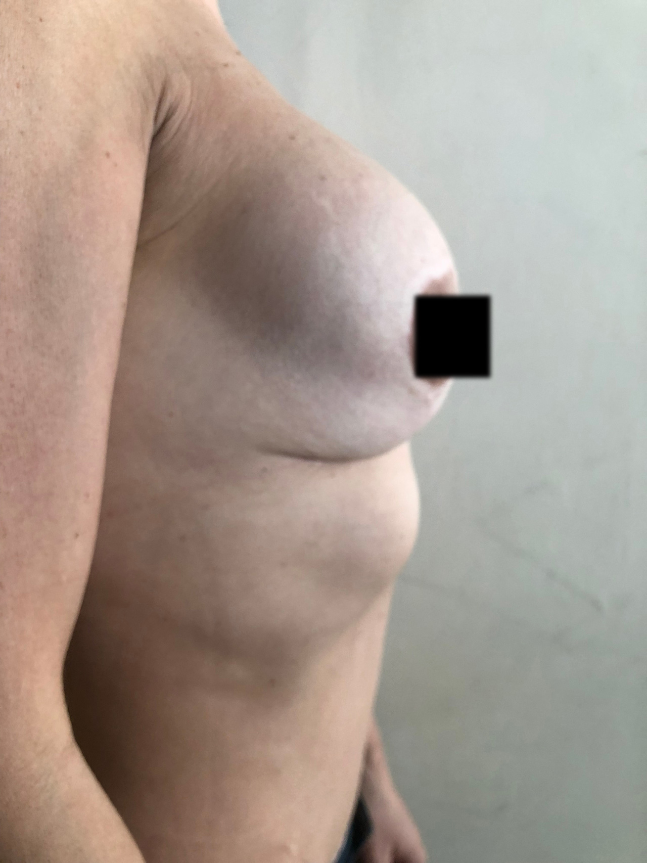 implantes-rotos-3