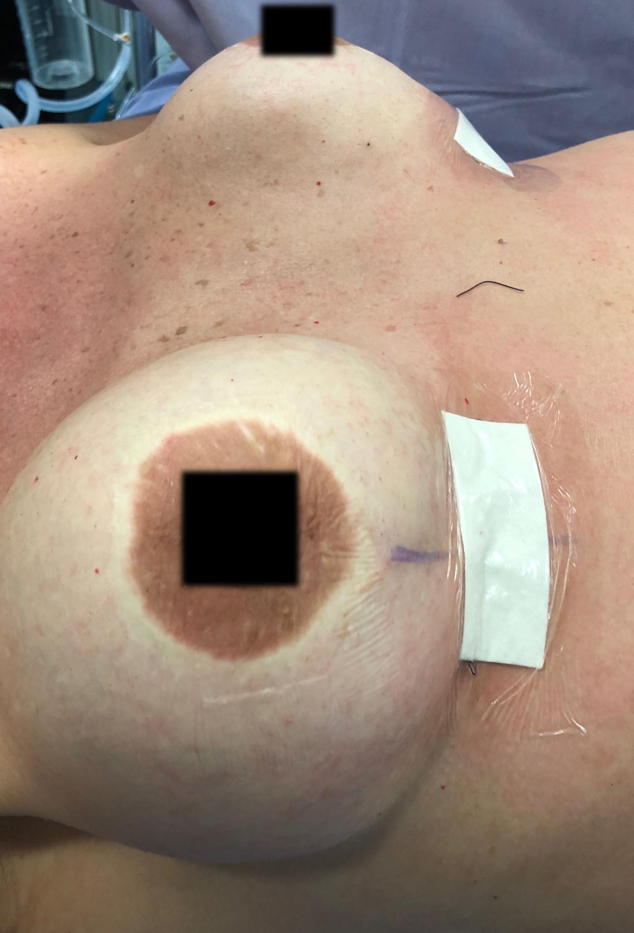 implantes-rotos-5