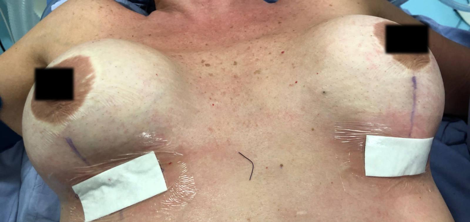 implantes-rotos-7