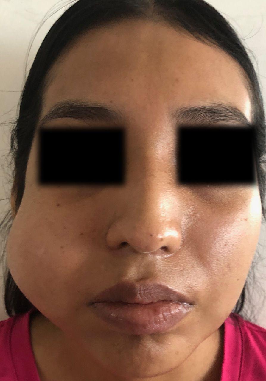 caso-clinico-bichectomia-01