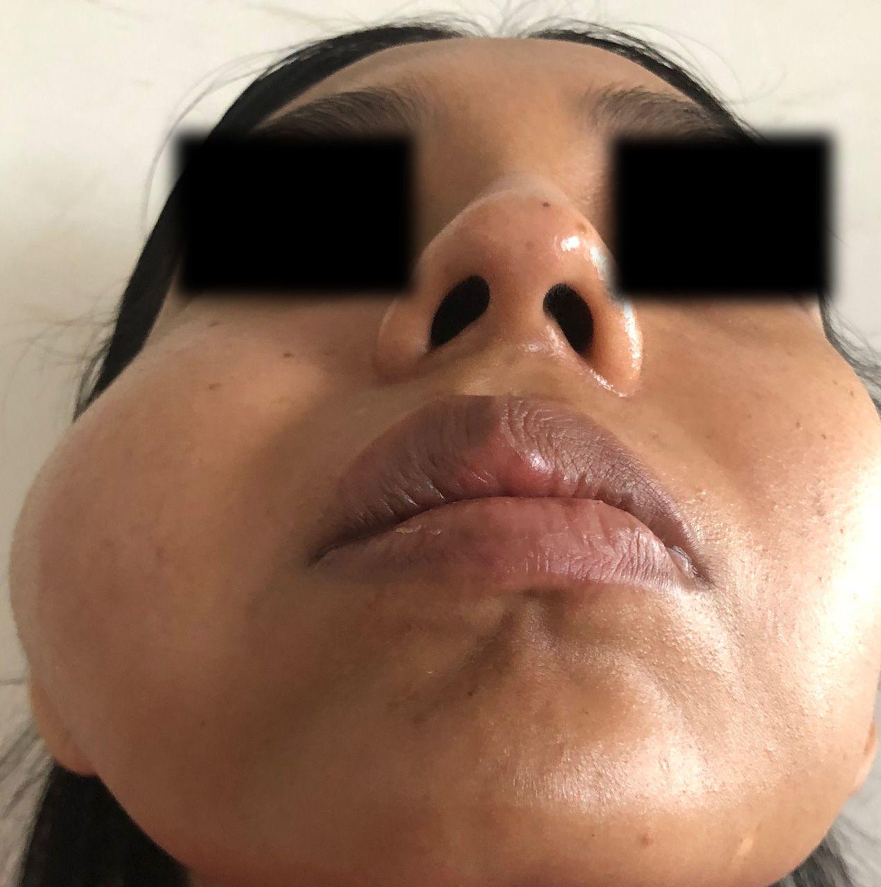 caso-clinico-bichectomia-03