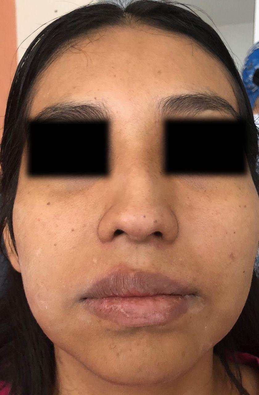 caso-clinico-bichectomia-04