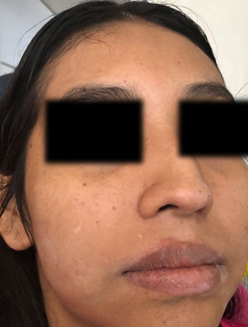 caso-clinico-bichectomia-05