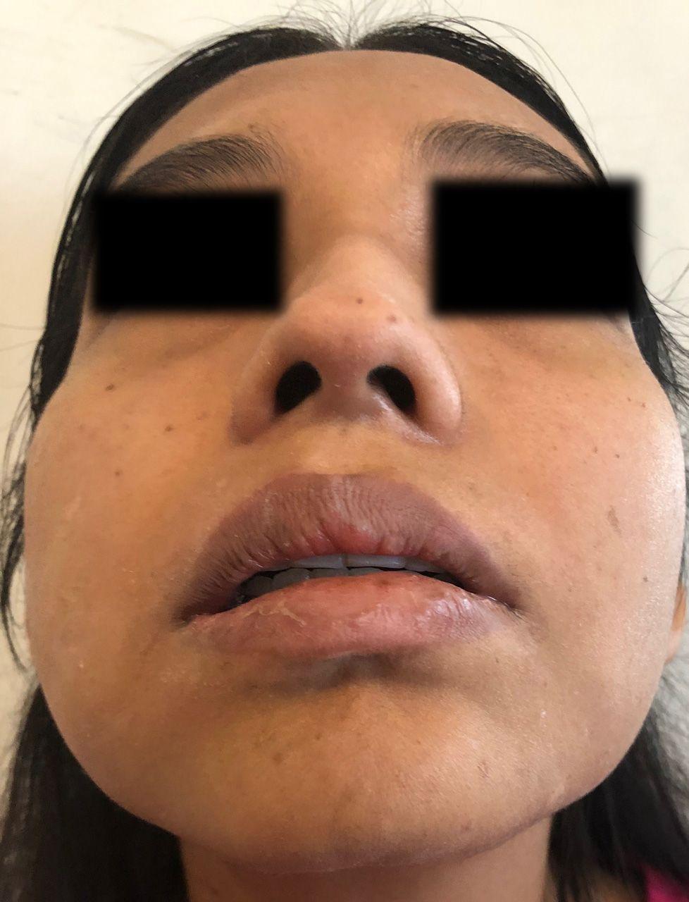 caso-clinico-bichectomia-07