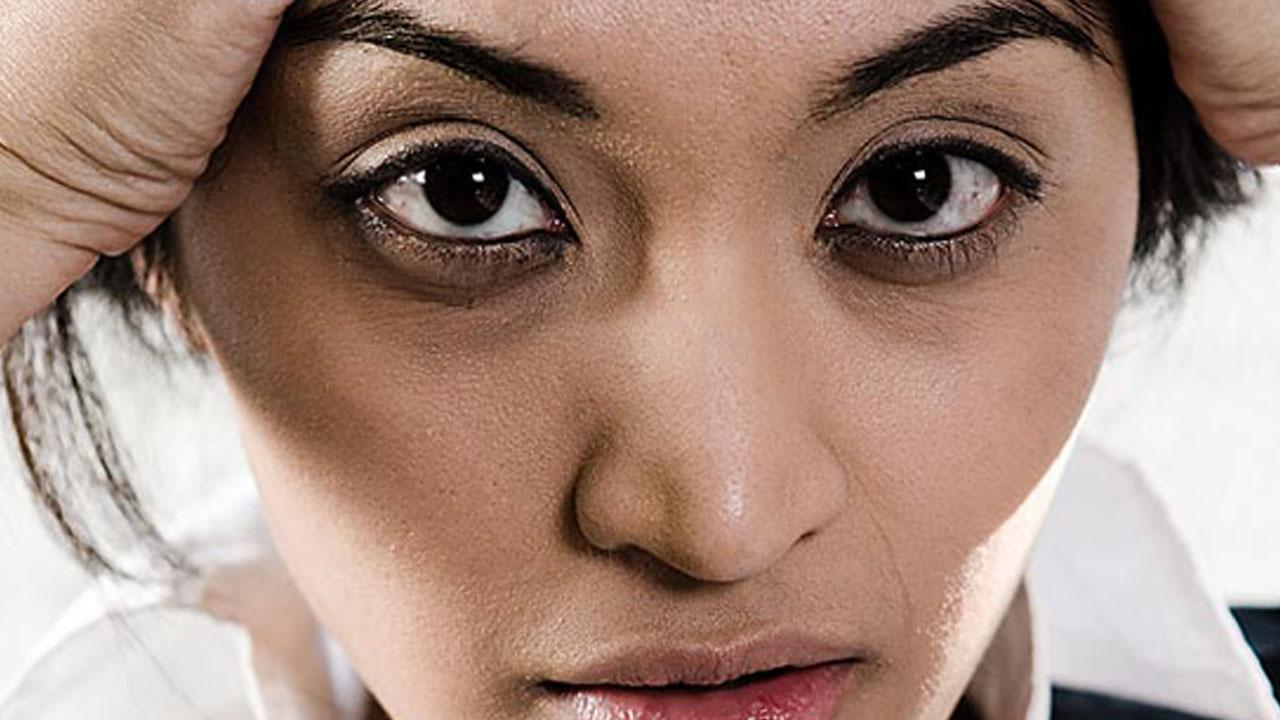 Las ojeras tienen un color violáceo o amarronado