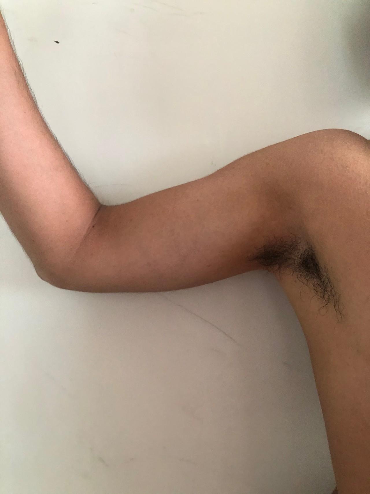 implante-biceps-2