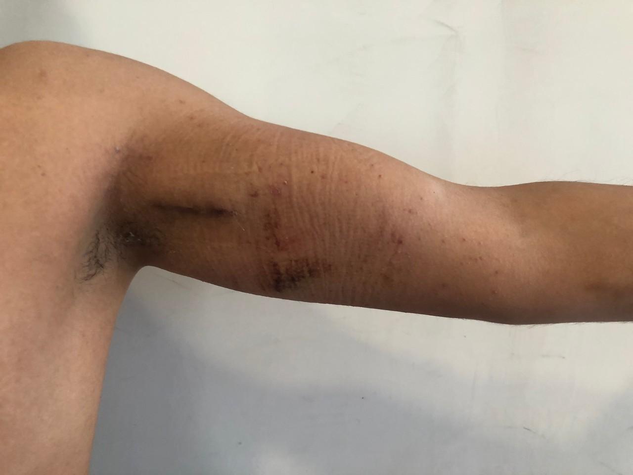 implante-biceps-3