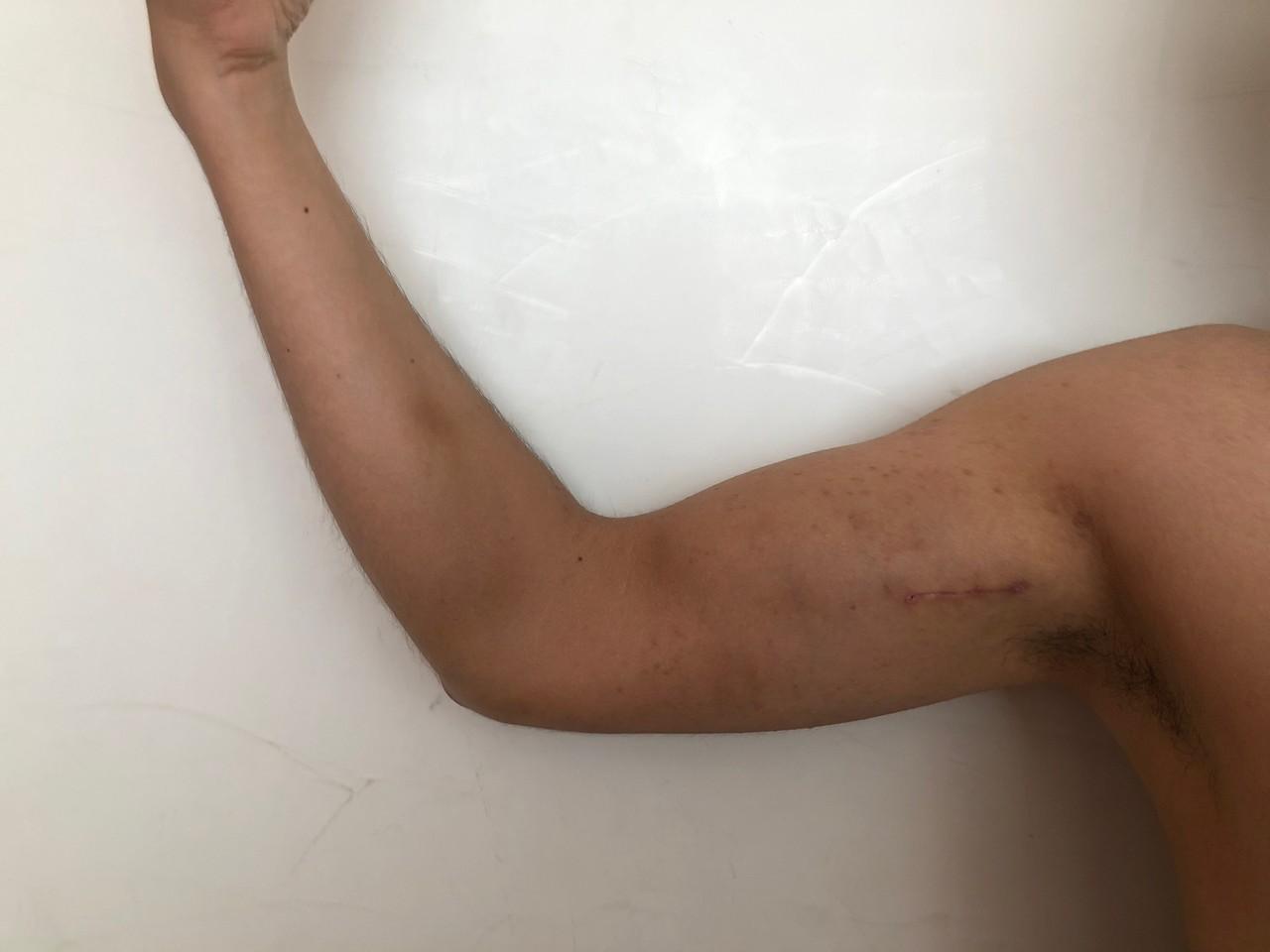 implante-biceps-4